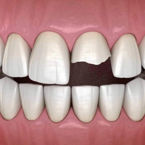 dente-rotto-e-scheggiato